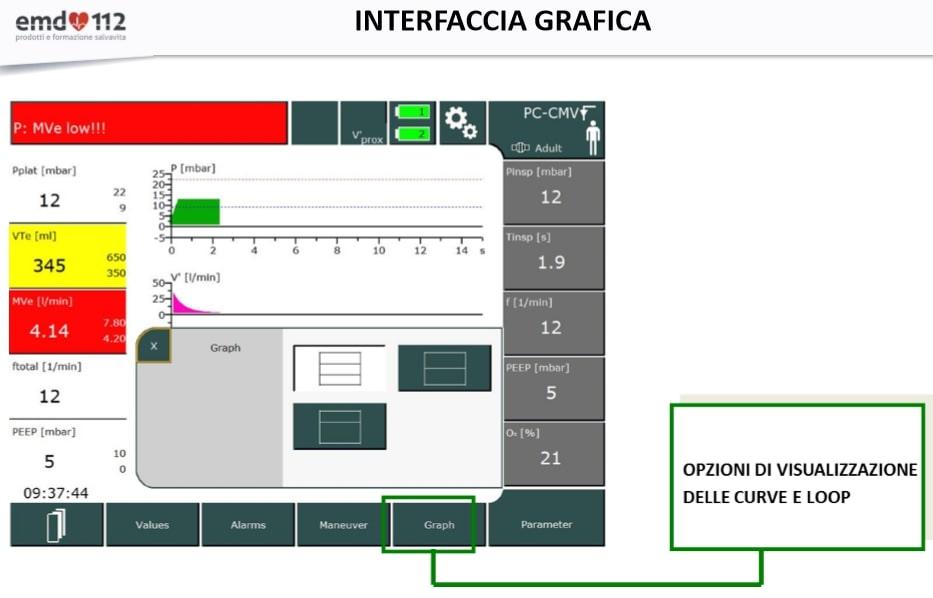Ventilatore Polmonare EVE TR interfaccia grafica 2