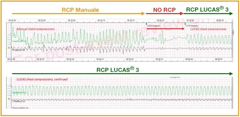 RCP - Massaggiatore Toracico Automatico